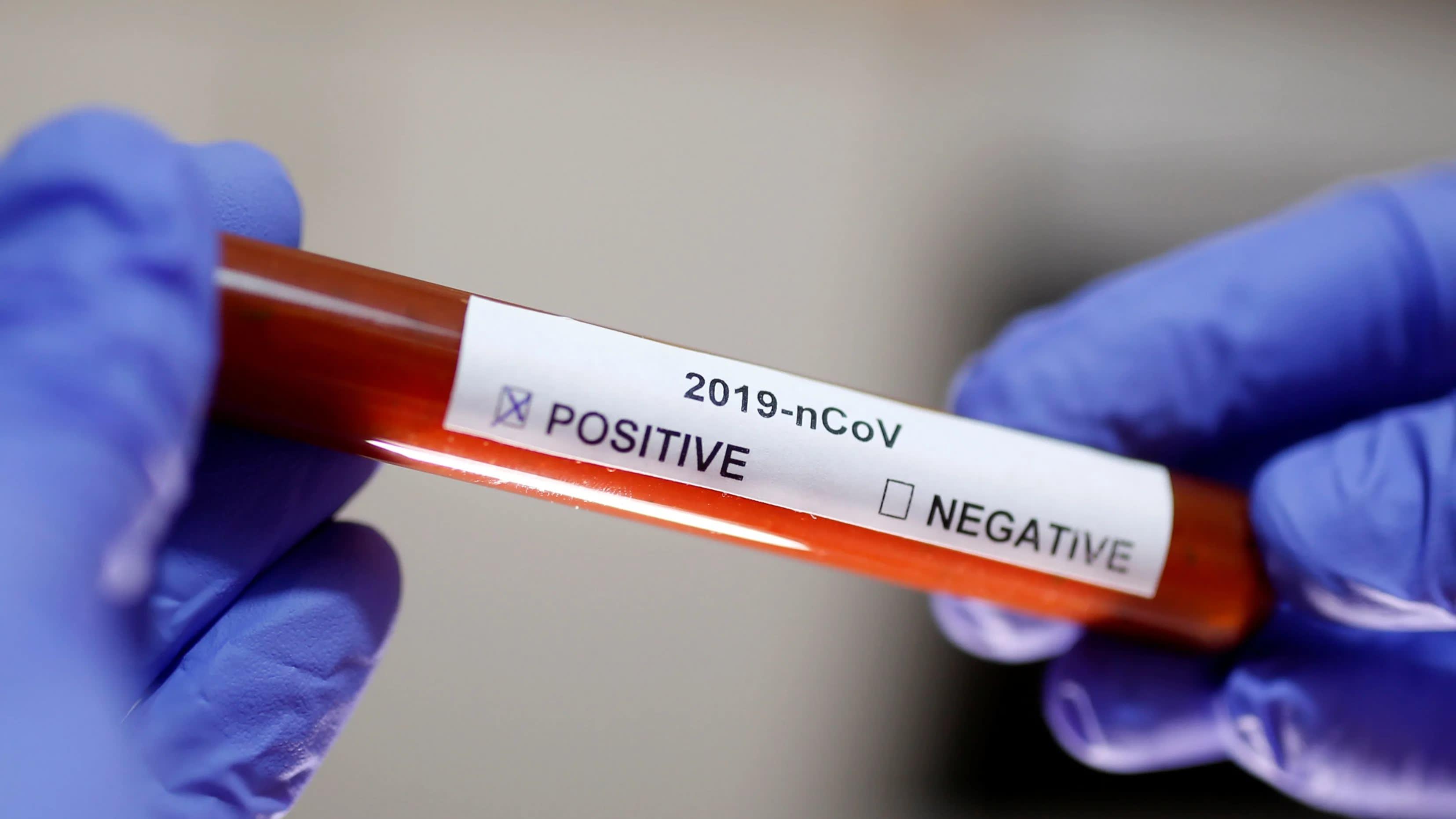 देश में कोरोना वायरस के मामले 10 लाख के पार