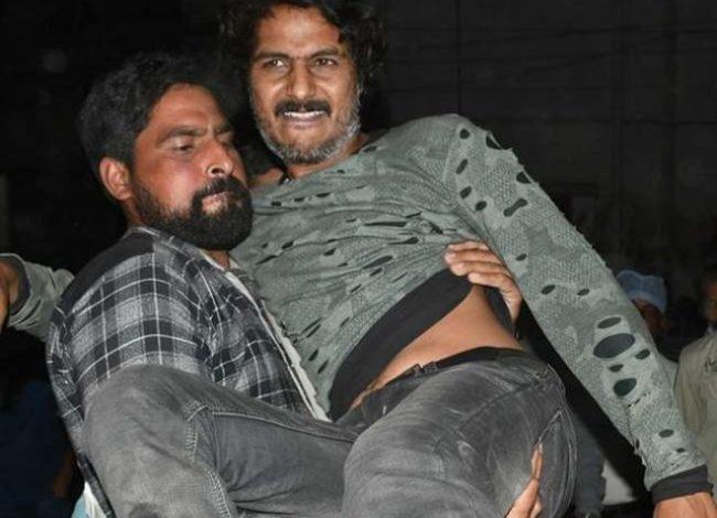 कानपुर- ईनामी बदमाश विक्की सोनी मुठभेड़ के बाद गिरफ्तार, हत्या, लूट जैसे कई केस दर्ज